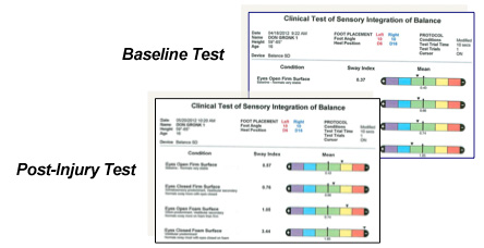 Balance Assessment Program for Concussion Management